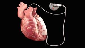 新型植入物可用电来治愈心脏