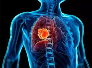 小小非编码小RNA隐藏肺腺癌早期诊断及治疗新线索