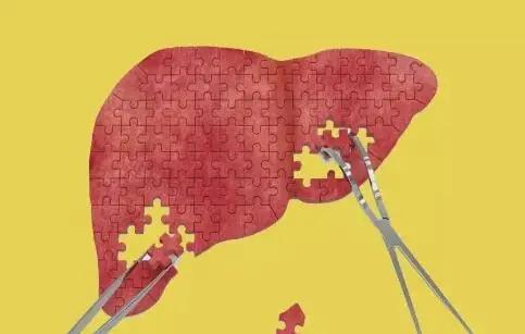 上海药物所等解析非酒精性脂肪肝病线粒体稳态失衡新分子机制并提出原始创新药物靶标