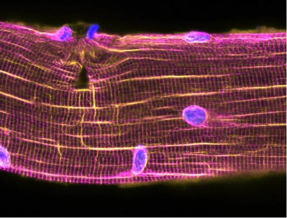 无需干细胞 肌肉自我修复新机制发现